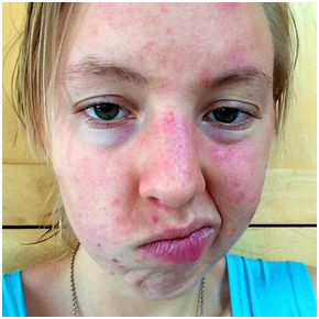 5 Surprising Ways to Clear Up Your Acne