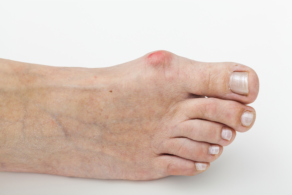 Free Yourself From Bunions